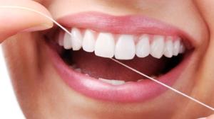Heritage-dental-Flossing-the-teeth