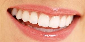 oral-health-smile