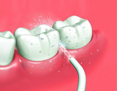 Oral Irrigator